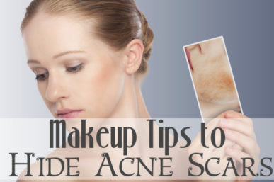 What Makeup to Use & What to avoid If You Have Acne Scars